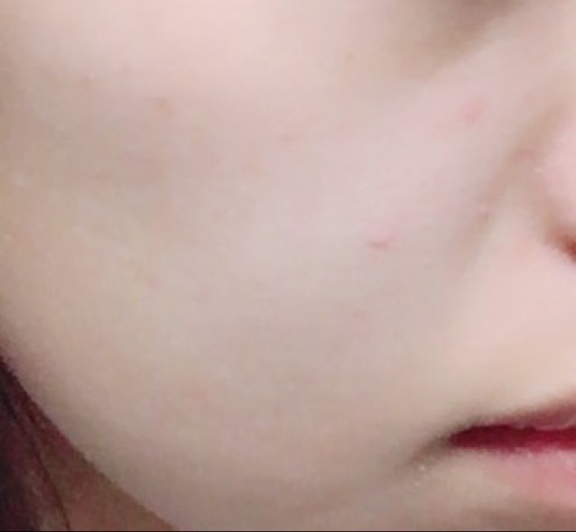 そしてBBクリームを顔全体にぬっていきます ここで、ニキビ跡が気になる方や隠したい箇所がある方はコンシーラーを使っても◎