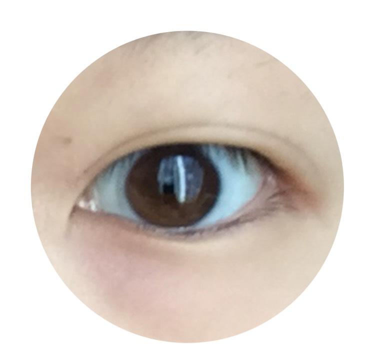 ファンデーションとパウダーで顔を白くした後、アイプチで幅が広めな二重を作ります。