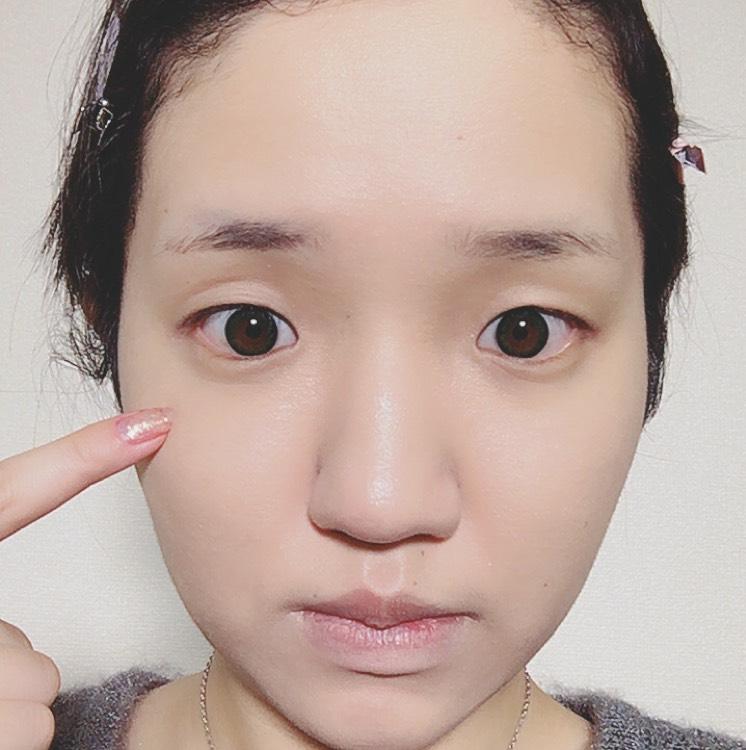 最近のお気に入りコンシーラー♡ドーリーコスメのAfter画像