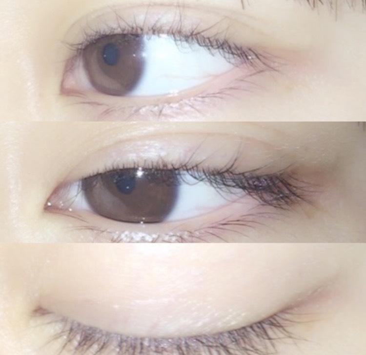 なのですが、学校で付けていくのもいやなので、寝る前や目の調子が悪い朝の短時間だけ付けることにしたら、見事にあとがつきました。 私は目の周りの皮膚が薄かったので、あとがつきましたが、瞼が重いって人は、一度やって見て、無理そうだったら絆創膏ならばれないのでやって見てください(๑ ˙˘˙)/
