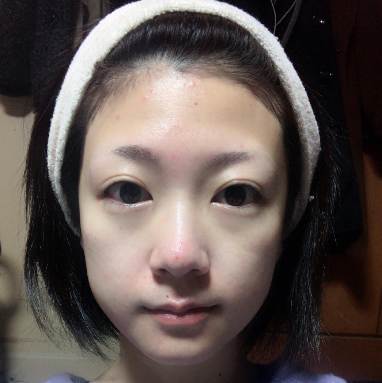 化粧水、乳液でしっかりと保湿します。