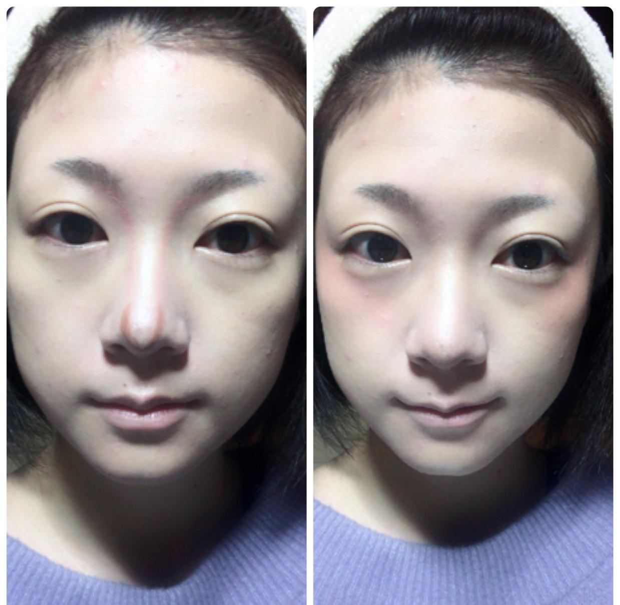 おでこ、鼻筋、ほうれい線にハイライト、 鼻筋のワキにサーモンピンクのコントゥアペンシルで、鼻先にブラウンでラインを入れ、指でなじませます。 クリームチークをほっぺの高い位置の外側に塗ってからマシュマロフィニッシュパウダーをブラシで塗ります。
