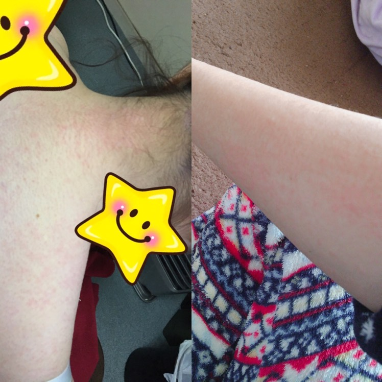 画像は背中と腕です。  使って数時間で顔がピリピリして、お風呂入ったあとに 肌が蕁麻疹みたいな感じで赤み帯びてました(´;ω;`)