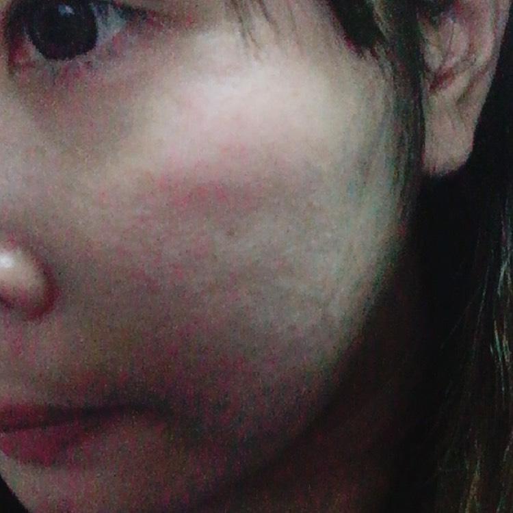 肌汚いですが(>_<;) 画像では分かりにくいですが 結構ポツポツして赤くなってます汗  敏感肌の私には合わなかったようです(´;ω;`)