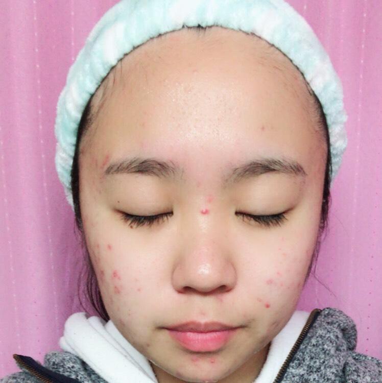 肌が荒れに荒れた酷い状態で洗顔してみます! まず朝の洗顔で使ってみました!
