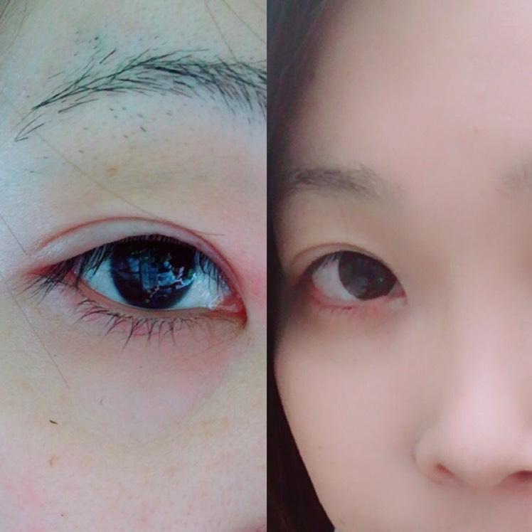 腫れぼったい目からのアイメイク