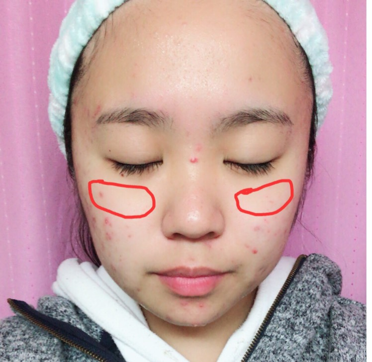 目の下に楕円形になるように塗る。