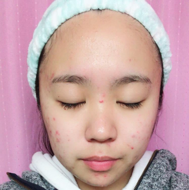 顔面全体に小指の第1関節が少し隠れるくらいの量のニベアクリームをまんべんなく塗る。