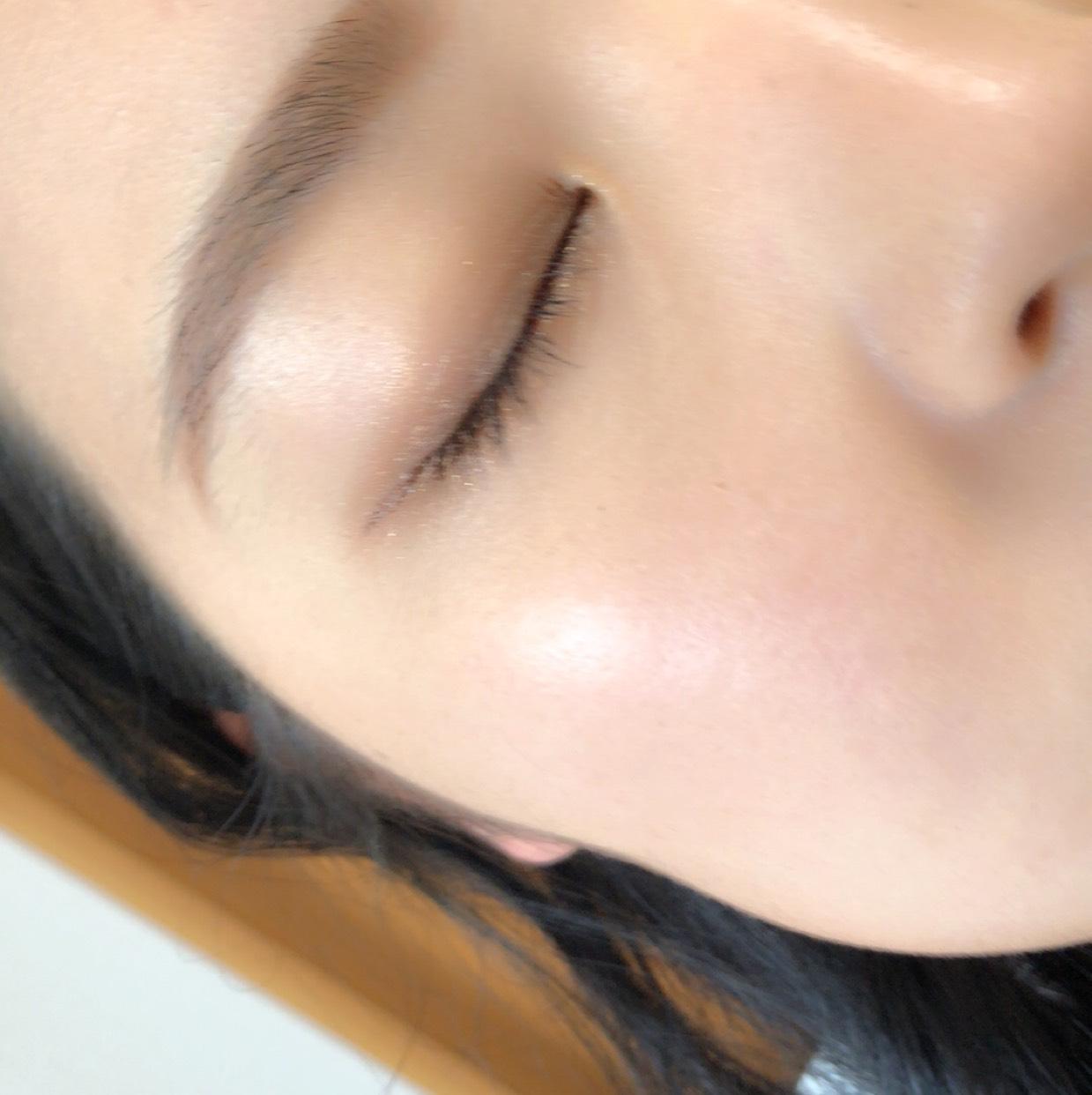 【スキンケア】韓国っぽ♡陶器肌の作り方のAfter画像