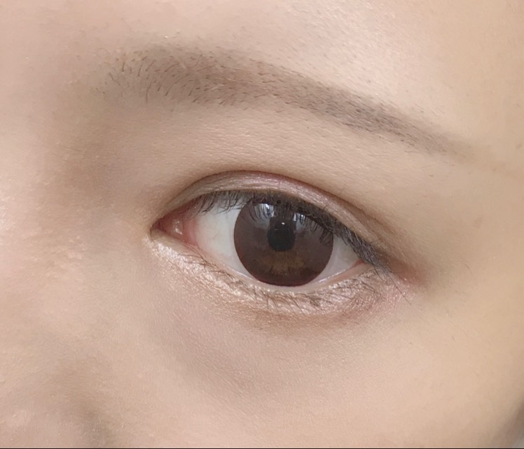 # IT EYESのBefore画像