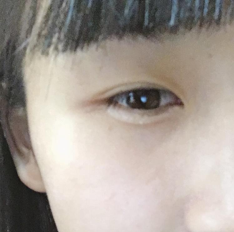 涙ぶくろ〜茶色編〜のAfter画像