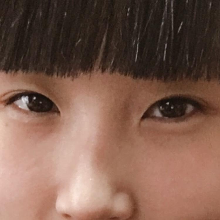 涙ぶくろ〜茶色編〜のBefore画像