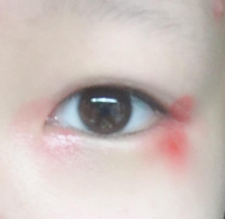 2.[ドゥ・ベストACクレヨンリップ01チェリーレッド]口紅を指に取りちょんちょんと目頭と目尻に付けます。