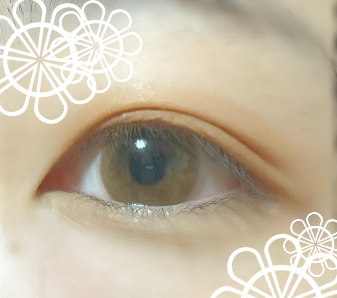 目を開けたらこんな感じです! 私は並行二重が似合わないのでこの二重の形にしています^^* 最後までみてくださりありがとうございます(;;)