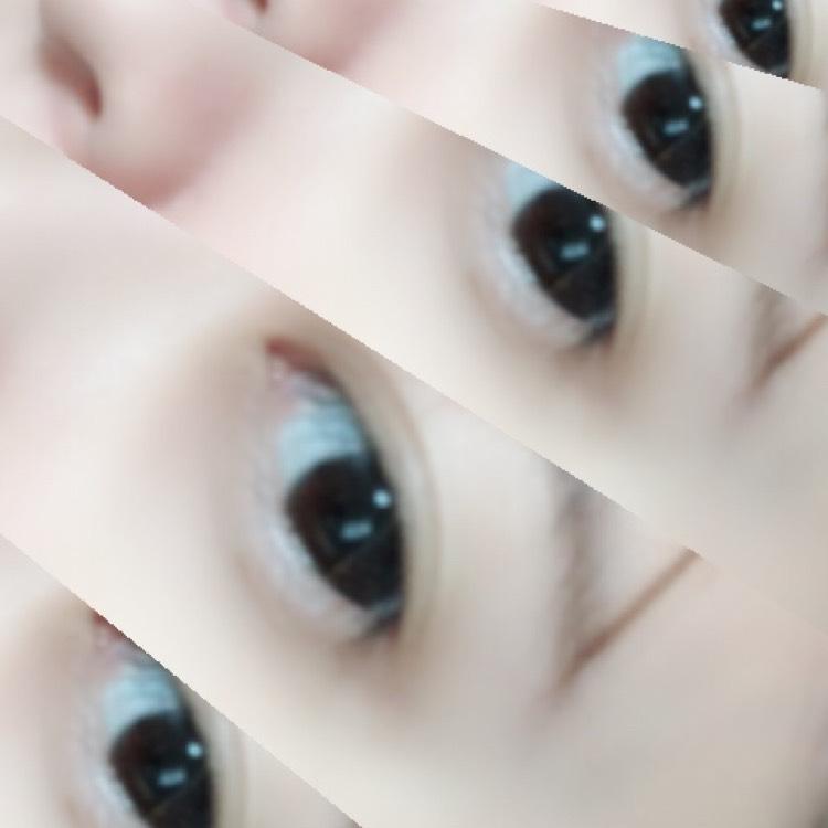 レオパードサン☆のBefore画像