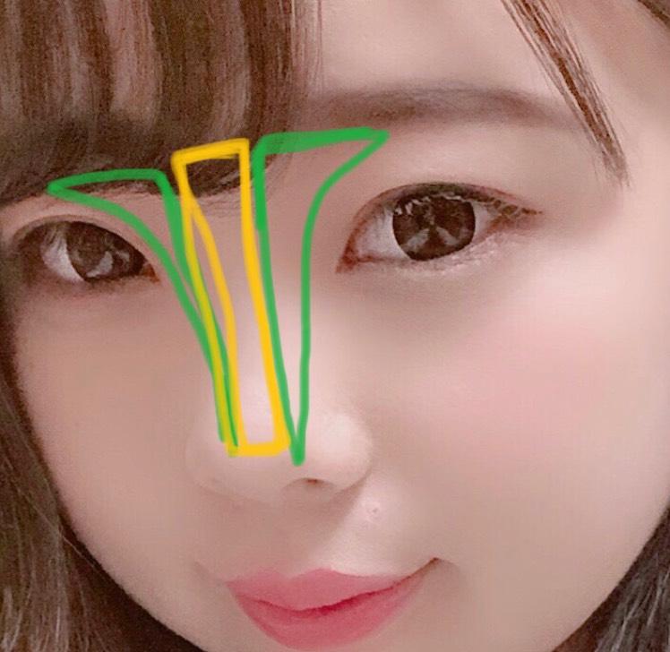 まなてぃの特徴その2は、鼻筋がめっちゃハッキリしてるところ。緑がノーズシャドーで、黄色がハイライトです。あんまりぼかさずにハッキリ陰影をつけるのがポイントです。