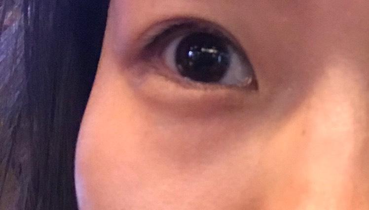 レクトフェアリーユーザーセレクト サニーブラウンでウルウル瞳♡のBefore画像