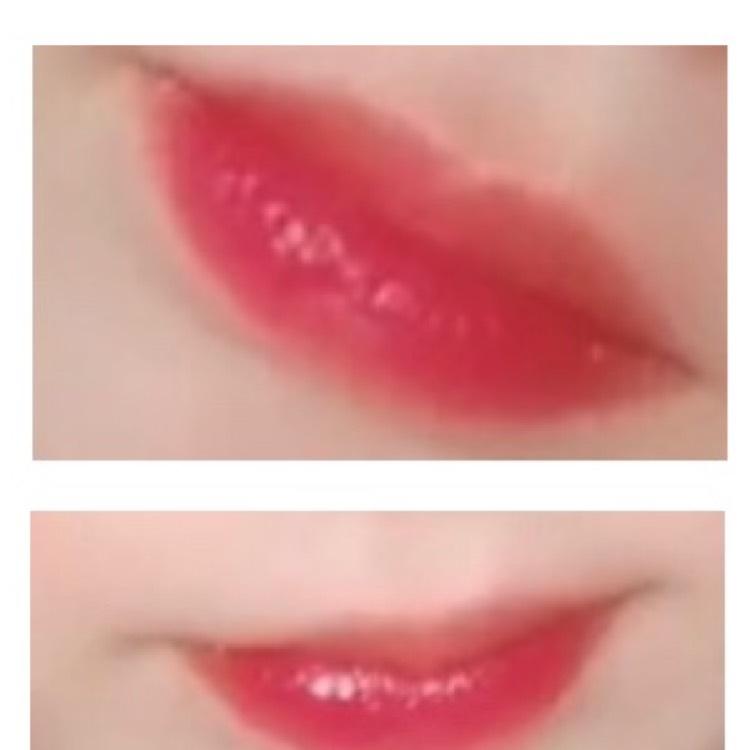 私の唇事情