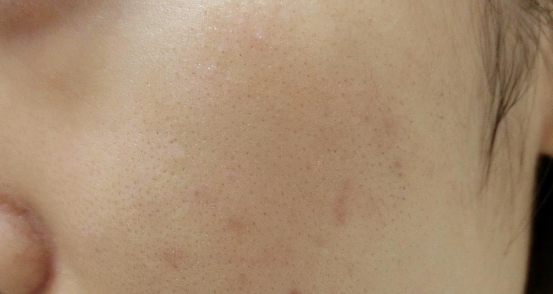 毛穴やニキビ跡が気になるすっぴん肌