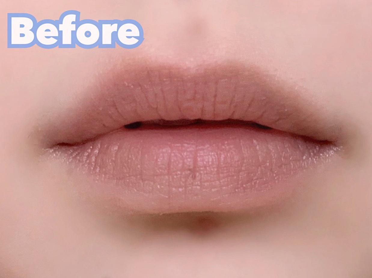 口角の上げ方のBefore画像